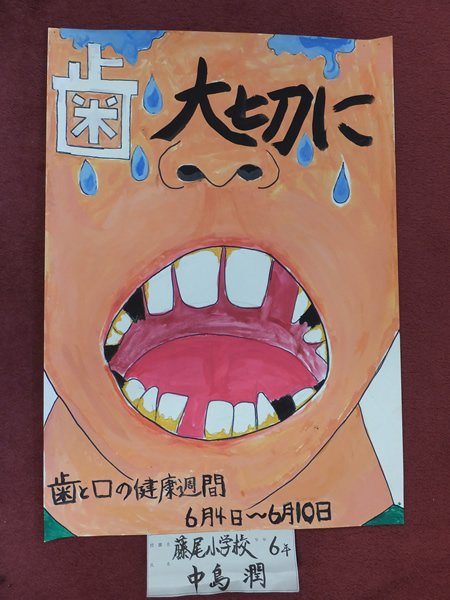 歯科医師 標語 歯 ポスター